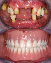 image of full arch implant case study
