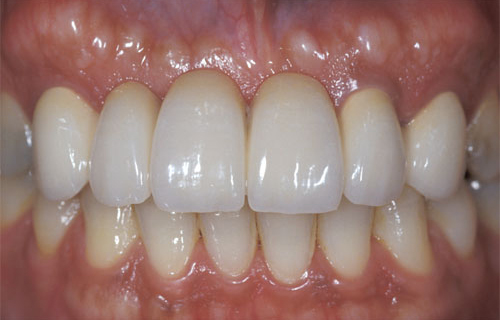 Photo of mouth after getting an anterior bridge at Dallas Prosthodontics in Dallas, TX