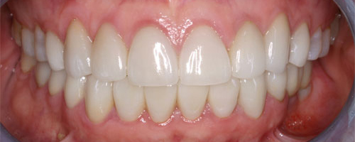 Photo of mouth after getting anterior crowns at Dallas Prosthodontics in Dallas, TX