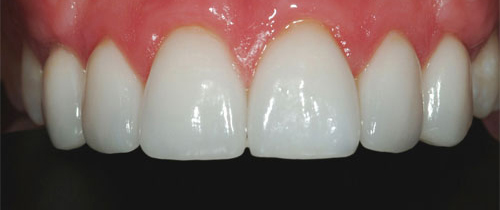 Photo of mouth after getting ceramic veneers at Dallas Prosthodontics in Dallas, TX
