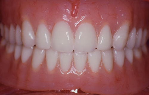 complete dentures after uniform