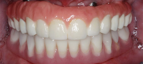complete fixed bridges ceramic after 3 uniform