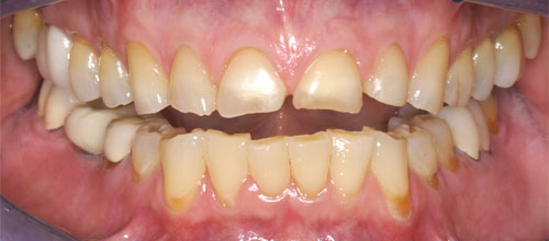Photo of mouth before full mouth reconstruction procedure at Dallas Prosthodontics in Dallas, TX