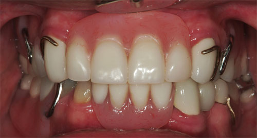 removable partial dentures final front