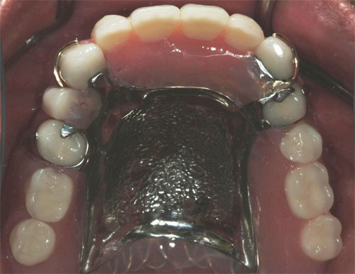 removable partial dentures final top