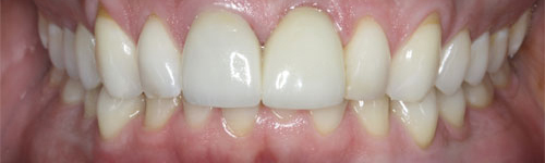 single tooth replacement after 4 uniform
