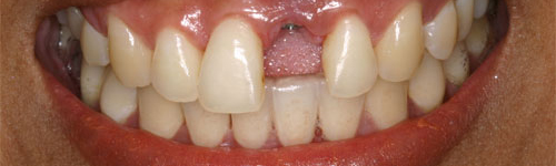 single tooth replacement before 3 uniform