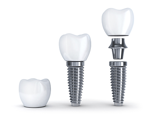 Dental Implants Dallas TX
