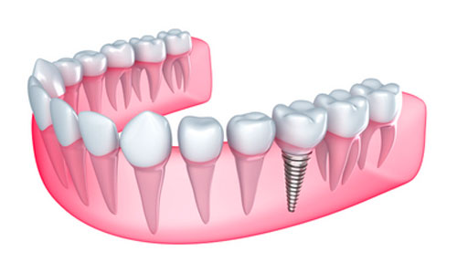 Why You Should Consider Dental Implants Over Dentures Whenever Possible