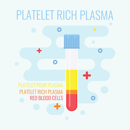Diagram of Platelet Rich Plasma in a vial.