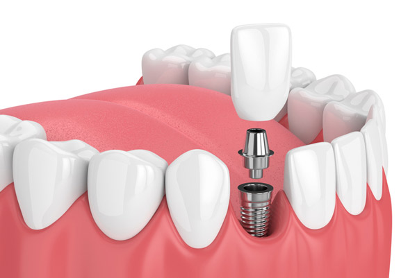 Diagram of Titanium Dental Implants at Dallas Prosthodontics